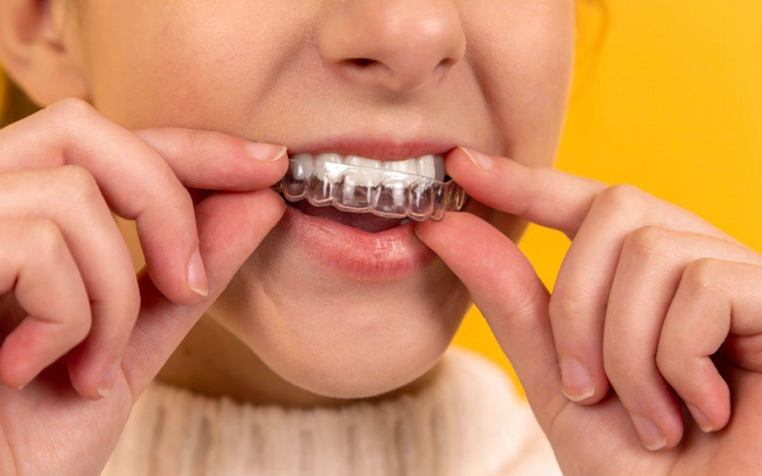 Zahnbegradigung mit Invisalign