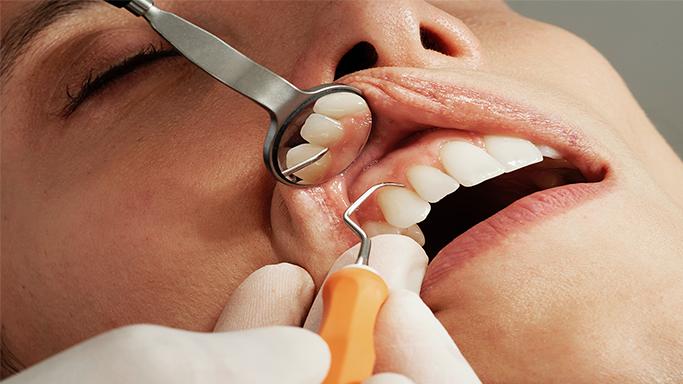 Paradontologie die Zahnärzte Karlsruhe