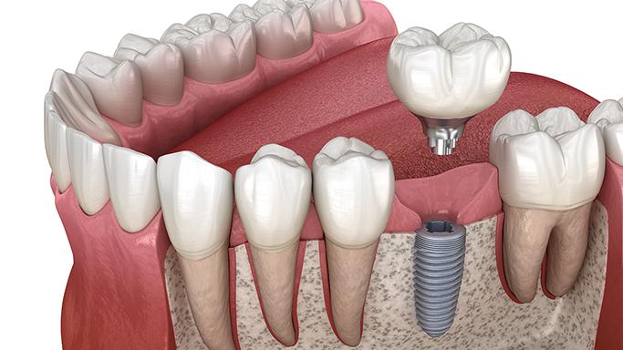 Zahnimplantate-Leistungen
